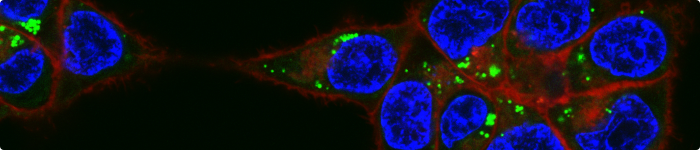 Confocal microscopy image of HCT 116 cells treated with fluorescently labelled poly[N-hydroxyethyl methacrylamide]. Copyright: Dr Laura Purdie.